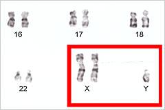クラインフェルター症候群の染色体の写真